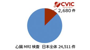 心臓MRI検査