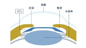 ICL術式のイメージ