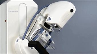 小さな乳がんの発見に貢献する多角度撮影 3 Dマンモグラフィ